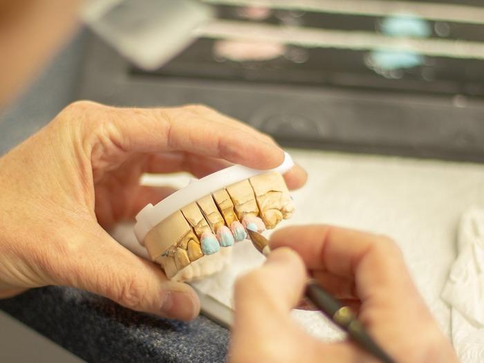 Зубной техник занимается разработкой и созданием разных протезов от зубов до лицевых частей